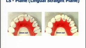Scuzzo & Takemoto 2010 Washington AAO meeting - New lingual straight wire method